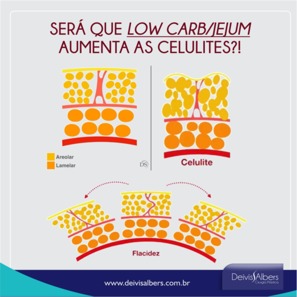 Jejum/Low Carb e celulites