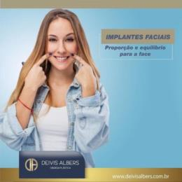 Implantes faciais